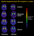Dopamine D2 Receptors in Addiction cs.png