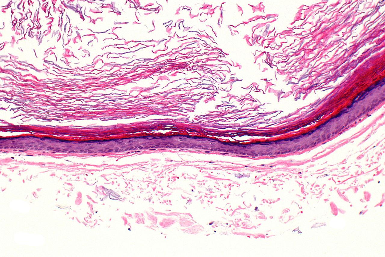 File Epidermal Inclusion Cyst