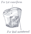 Anteromedial vy