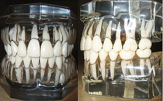 "Crown-to-root ratio - Models of human teeth as they exist within the alveolar bone.  The roots, as they can be seen through the transparent ""bone"", exist naturally in greater inciso-apical lengths than the crowns."