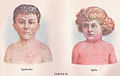 Measles and Scarlet Fever (3796080398) cs.jpg
