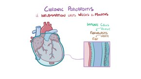 File:Pericarditis and Pericardial Effusions.webm