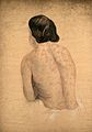 Syphilis; rash on woman's back, 1858 Wellcome V0009969.jpg