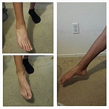 lidocaine patch for heel pain