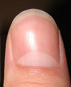 The Lunula Is White Crescent Shaped Area Of A Finger