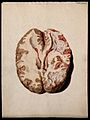 A diseased brain. Coloured stipple etching by W. Say after F Wellcome V0009778EL.jpg