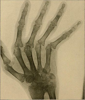 A text-book of radiology (1915) (14571034679)