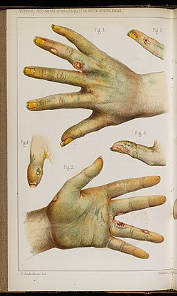 Accidents caused by the use of green arsenic, 1859 Wellcome L0075300