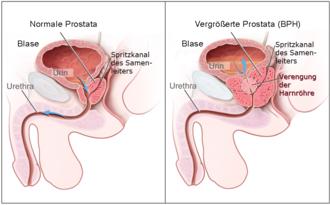 was heißt prostata