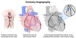 Coronary catheterization - Coronary Angiography.