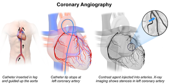 Coronary catheterization - Coronary Angiography.