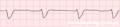 De-Rhythm idioventricular (CardioNetworks ECGpedia).png