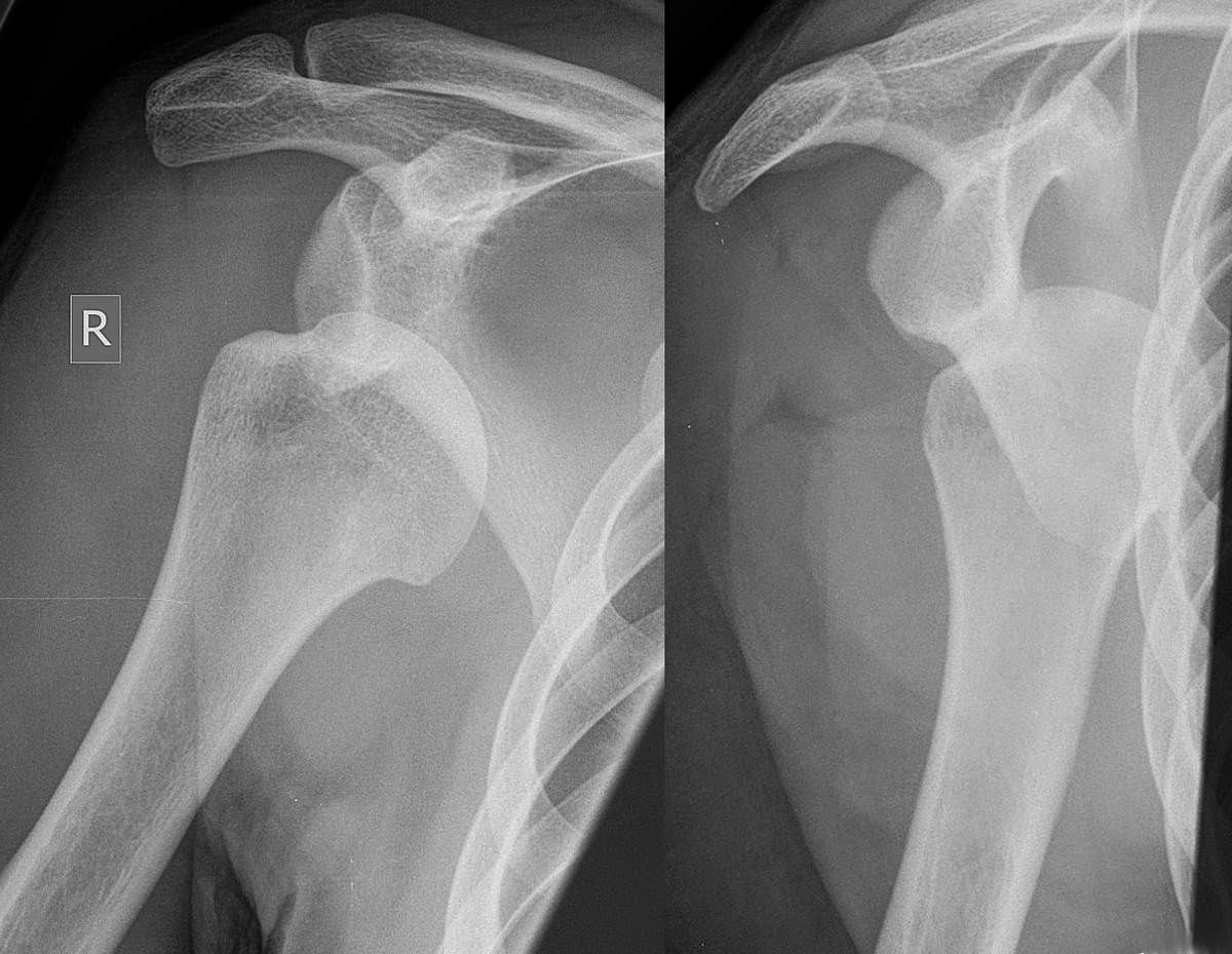 Hill–Sachs lesion - Wikipedia