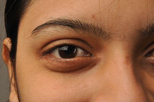 Eye 5788