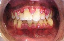 Gingivitis (crop).jpg