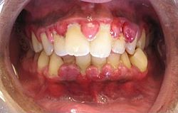 تضخم اللثة can be a feature in some periodontal diseases.
