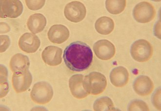 Lymphocyte - A stained lymphocyte surrounded by red blood cells viewed using a light microscope.