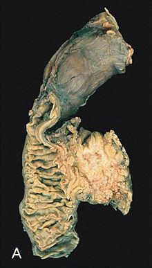 zwölffingerdarm tumor