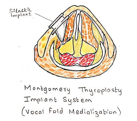 In this type of implant system, the thyroid cartilage is pushed towards the medial side using the silastic implant. Montgomery Thyroplasty Implant System.jpg