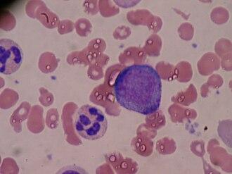 Promyelocyte - Image: Promyelocyte
