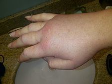 Swollen hand during a hereditary angioedema attack..jpg