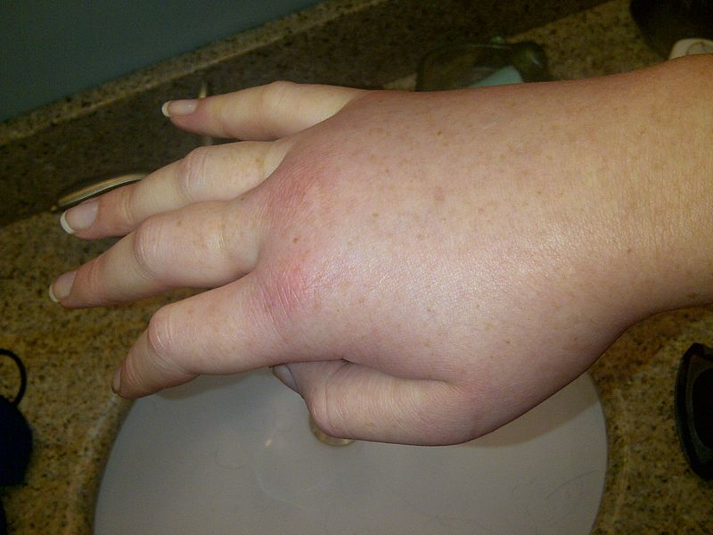 File:Swollen hand during a hereditary angioedema attack..jpg Description English: Swollen right hand in a female patient during a hereditary angioedema attack. Hereditary angioedema