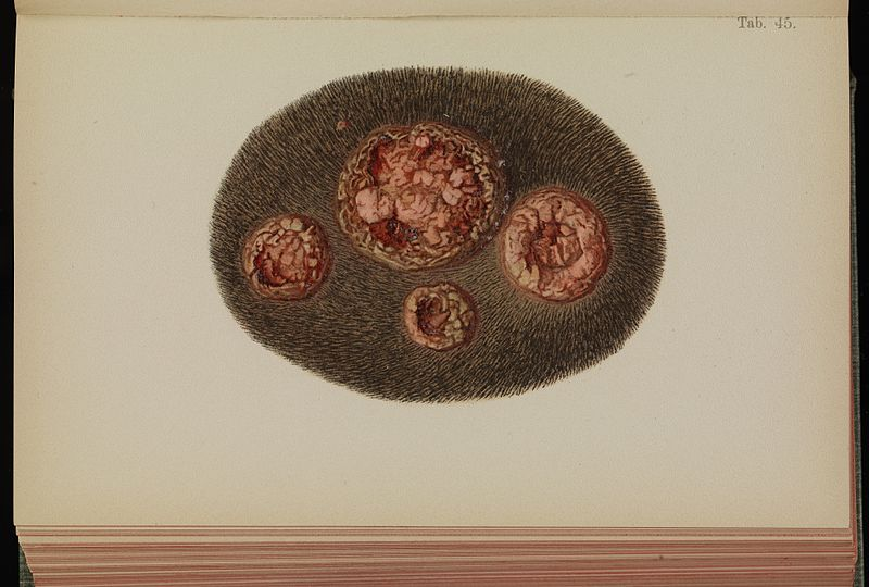 File:Tab 45, Yaws, head. Mracek, 1898 Wellcome L0074254.jpg