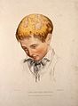 The head of a boy with a skin disease of the scalp. Coloured Wellcome V0009861.jpg