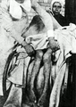 1900 Arsenical Poisoning Victim.png