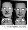 A.Seltzer, Plastic Surgery of the Nose Wellcome L0031074.jpg