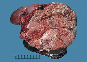 Adrenal cortical carcinoma.JPG