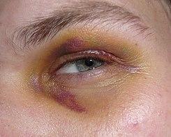 hematoma definicion médica
