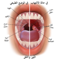 Blausen 0860 Tonsils&Throat Anatomy-ar.png