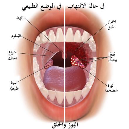 التهاب اللوزتين Wikiwand
