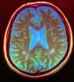 Brain MRI 135119 rgbca.png