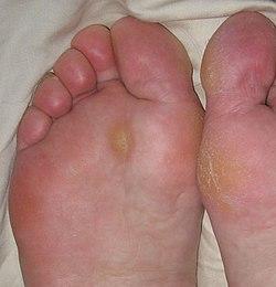 Calluses.jpg