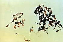 Clostridium tetani.jpg