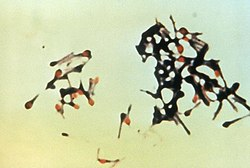 Clostridium tetani
