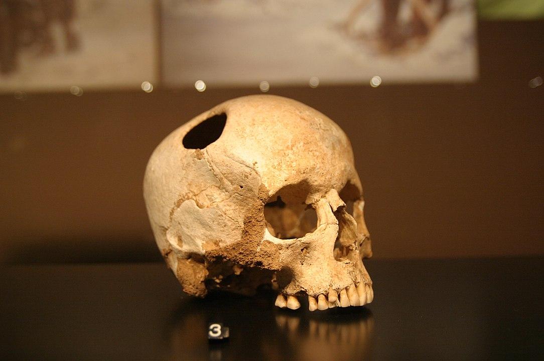 Crâne de jeune fille trépanée au silex, Néolithique (3500 av. J.-C.) ; la patiente a survécu ! © Rama / Wikimedia CC BY-SA 3.0