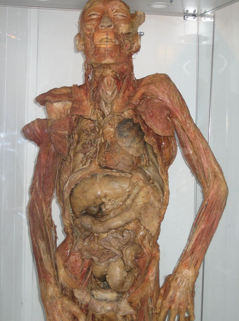 Dateiembalmed Body Of A Mang Wikipedia