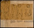 Illustrations of children with orthopedic disorders Wellcome V0017048.jpg