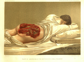 Casualty (person) - Shell fragment injury, American Civil War