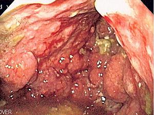 Endoscopic image of linitis plastica, where th...