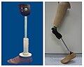 Low cost prosthetic limbs.jpg