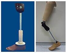 prothesis under knee