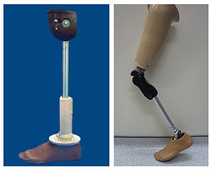 English: Low cost above knee prosthetic limbs:...