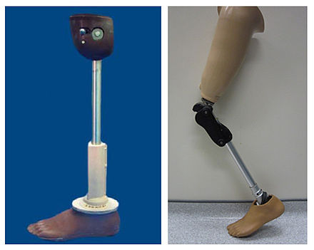 Low-cost above-knee prosthetic limbs: ICRC Knee (left) and LC Knee (right) Low cost prosthetic limbs.jpg