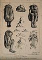 Malformed foetuses and skeletons with part of the brain miss Wellcome V0007404.jpg