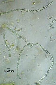 vesiculas de gas cianobacterias
