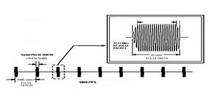 Pulsed radiofrequency - The pulse packet frequency in this example is 27.125 MHz of RF energy